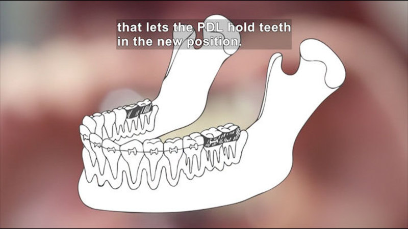 Still image from How Do Braces Work?