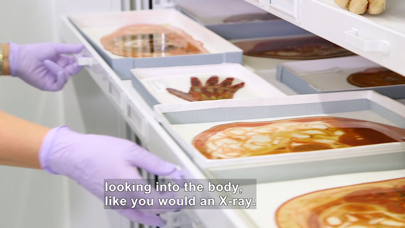 Drawer containing thin, preserved cross sections of the human body. Caption: looking into the body, like you would an x-ray.