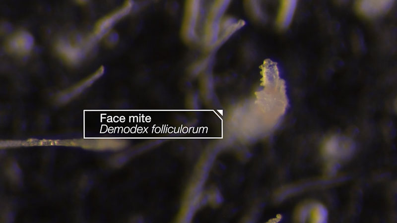 Still image from: Deep Look: These Face Mites Really Grow on You