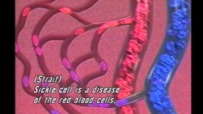 Still image from: Sickle Cell Disease...Faces of Our Children