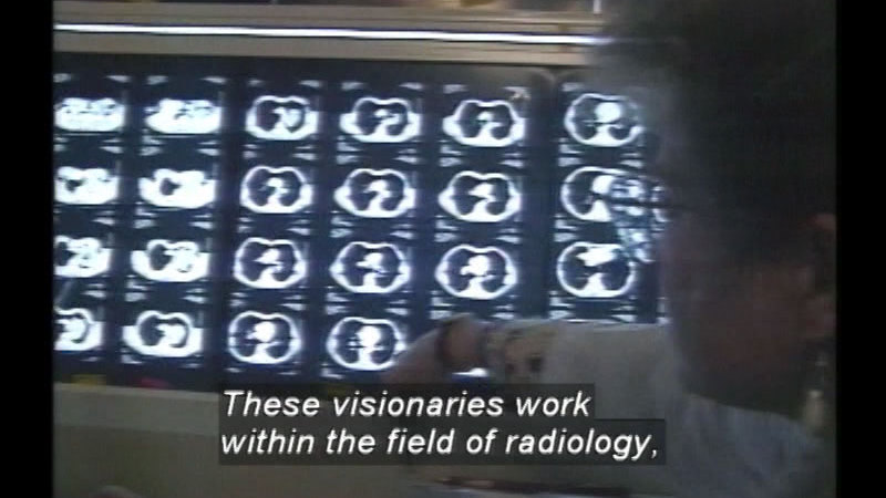Still image from Radiologic Technology Careers: Nuclear Medicine