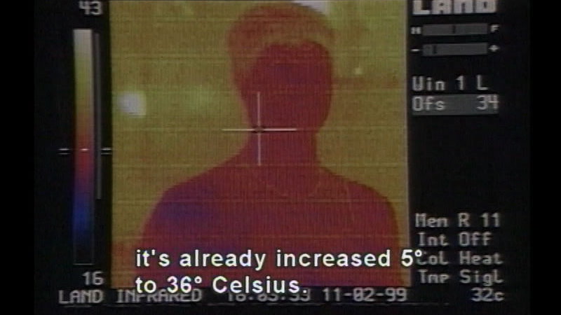 Infrared scan of the head and shoulders of a person mostly in red and yellow. Caption: it's already increased 5 degrees to 36 degrees Celsius.