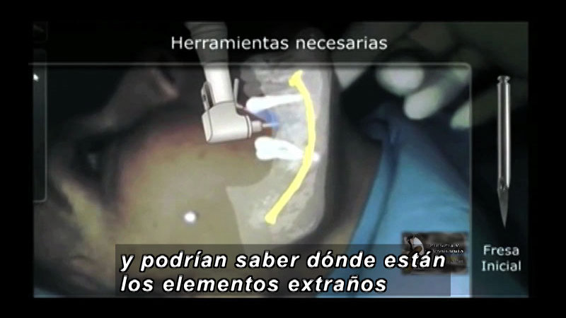 Computer simulation of a person practicing a dental procedure. Spanish captions.