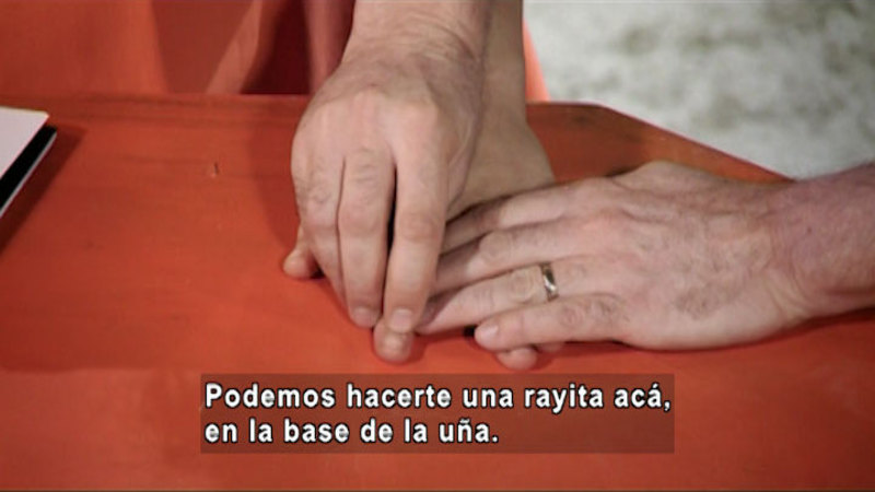 Person pointing to the fingernail on someone's hand. Spanish captions.