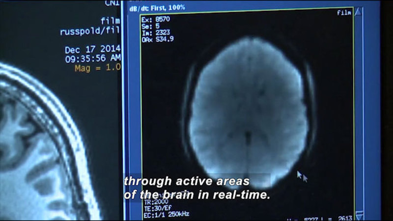Computer screen showing the cross section of a human brain. Caption: through active areas of the brain in real-time.
