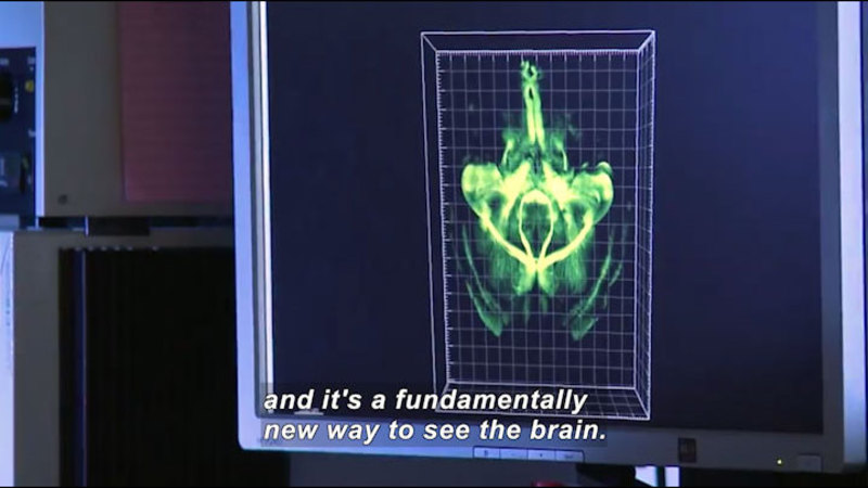 Computer screen showing a cross section of the human brain. Caption: and it's a fundamentally new way to see the brain.