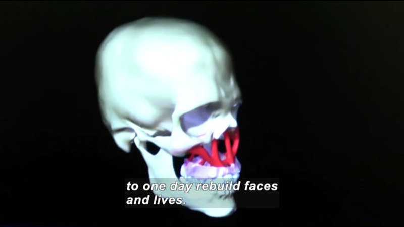 3D graphic of a human skull. Red latticework joins the area just under the eye sockets to the top of the jaw. Caption: to one day rebuild faces and lives.