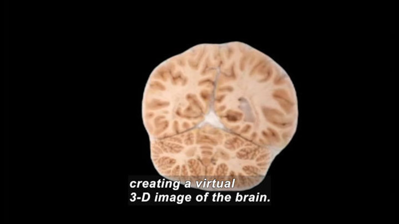 Cross section of the human brain. Caption: creating a virtual 3-D image of the brain.