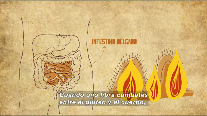Still image from: My Life With Myself: Living With Celiac Disease (Spanish)