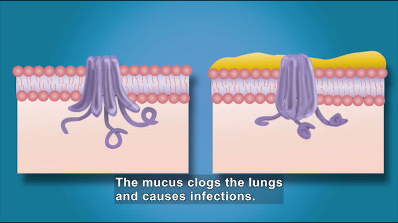 Diagram showing a lung structure with no mucus reaching into tissue below and the same lung structure covered in mucus unable to do the same thing. Caption: The mucus clogs the lungs and causes infections.