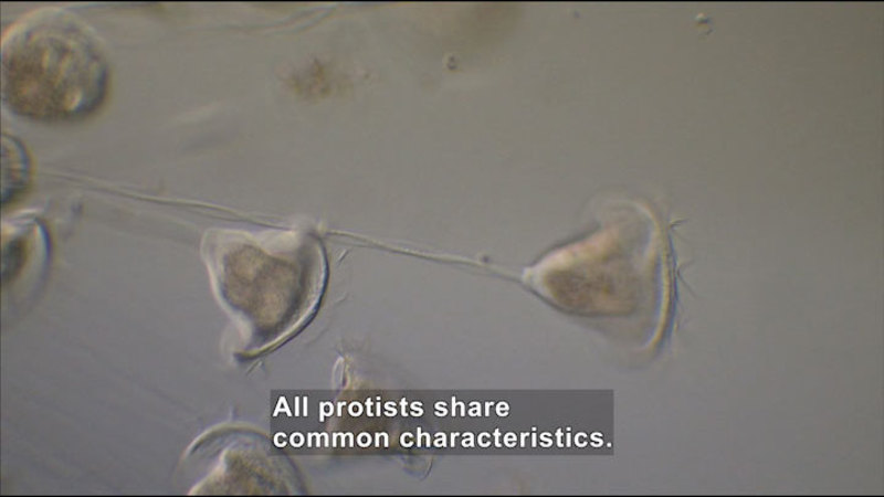 Microscopic view of bell-shaped organisms on a fine stalk. Caption: All protists share common characteristics.