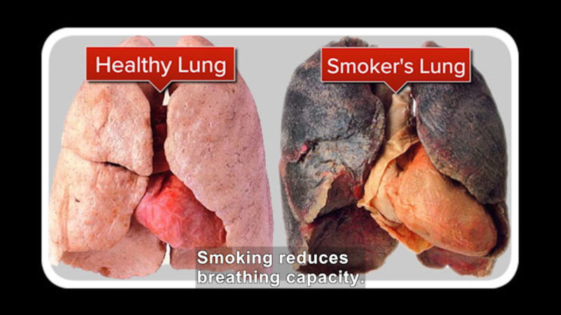 Still image from: Science Video Vocab: The Dangers Of Smoking